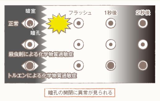 瞳孔の検査